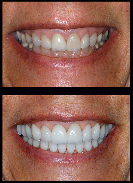 Before and after photos of a patient's smile makeover at cosmetic dentist in Victorville, CA.