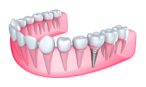 The Connection Between Dental Implants and Gum Disease