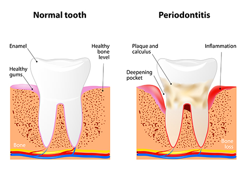 Illustration of a tooth with periodontal disease, in need of scaling and root planing, at dentist office in Victorville, CA.