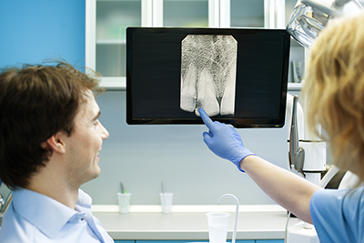 How safe are Dental X-Rays Today?